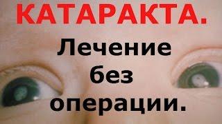 М.  Краснов.  Органы зрения -  катаракта.