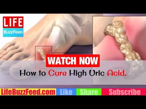 HOW to CURE High Uric Acid? Foods to AVOID with Gout? How to LOWER Uric Acid Levels & GOUT Treatment