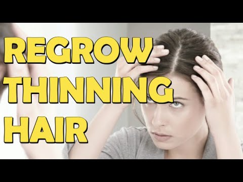 11 Things To Regrow Thinning Hair For Man And Women