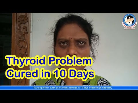 Thyroid problem cured and Swelling reduced in 10 days treatment @ Nadipathy