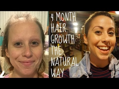 How I Am Speeding Up Hair Growth After Chemo NATURALLY!