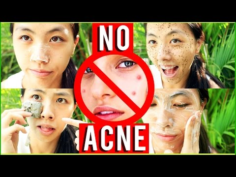 🙏🏼5 EASY WAYS to CLEAR SKIN NATURALLY! Remove PIMPLES OVERNIGHT & Get RID OF ACNE LIFE HACKS