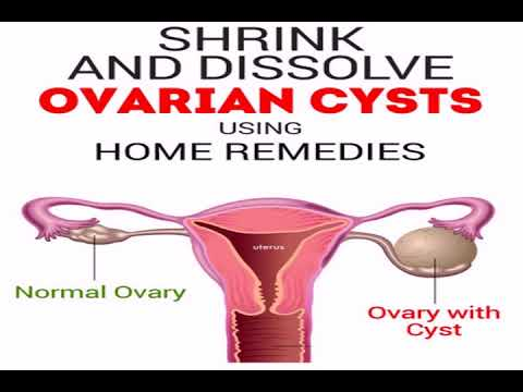 Ruptured ovarian cyst and kidney infection