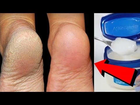 Apply This Before Going To Bed & Get Rid of Dry, Cracked Heels Overnight