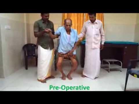 Knee Replacement Kerala (Dr.Premkumar V)