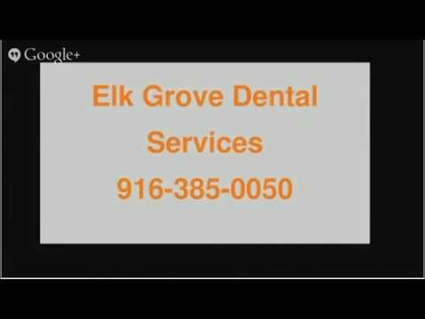 Find A Good Dentist In My Area Elk Grove CA  Call Today For Best Dental Services