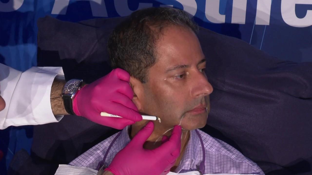 Treating the Submental Region: Facial Markings