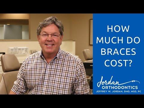 Braces Cost in the Alpharetta/North Atlanta Area