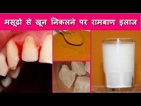 मसूढ़ो से खून निकलने पर घरेलू रामबाण इलाज - Home Remedies for Bleeding Gums,  Gum Disease, Pyorrhea