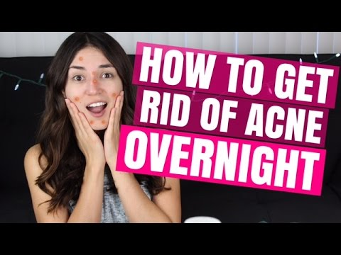 HOW TO GET RID OF ACNE OVERNIGHT | Mercades Danielle
