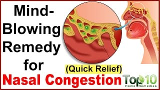 Instant Relief From Nasal Congestion Home Remedies