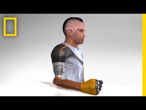 Sensation of Movement Recreated in Amputees' Robotic Arms | National Geographic