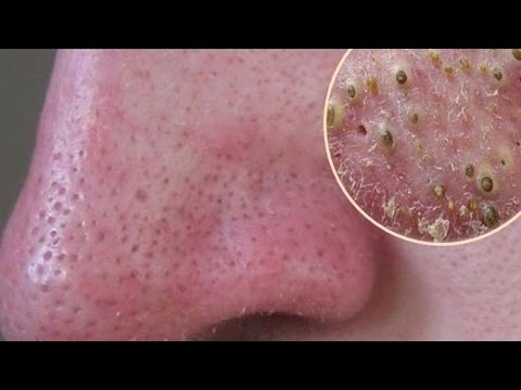 How To Remove Blackheads and Whiteheads Naturally