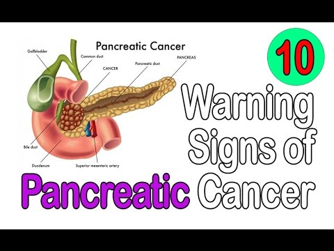 10 Warning Signs of Pancreatic Cancer