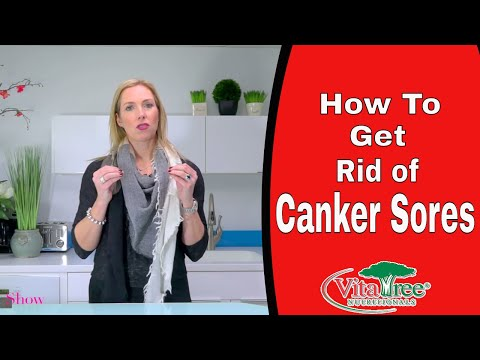 How to get Rid of Canker Sores: How Treat Canker Sores Fast - VitaLife Show Episode 227