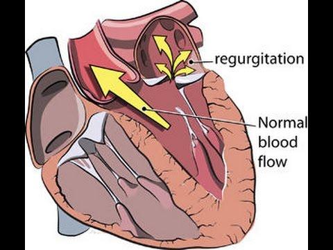 Signs and symptoms of Mitral Regurgitation