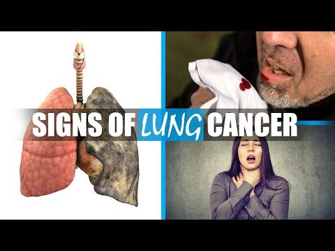 Symptoms of lung cancer - What are early signs of lung cancer you should not ignore