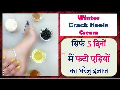 Winter Crack Heels Cream   सिर्फ 5 दिनों में फटी एड़ियों का घरेलु इलाज   Dr Shalini