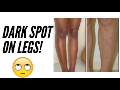 How To Get Rid Of Dark Spots/Hyperpigmentation On Legs (Part 1) Skincare Routine + acne tretinoin
