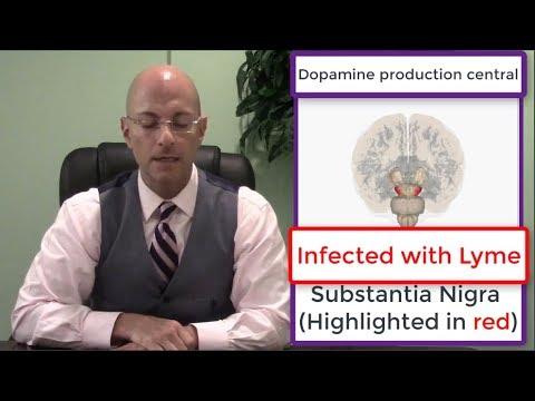 Parkinson's Disease Effective Treatment