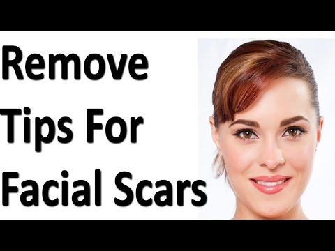 How to Remove Facial Scars
