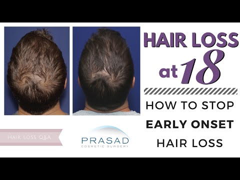 Hair Loss at 18 - a Better Treatment for Early Onset Hair Loss than PRP Alone