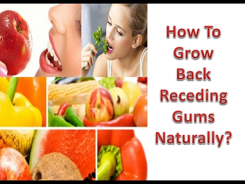 How To Grow Back Receding Gums Naturally?