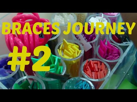 Braces Journey #2: Getting my Braces on, Experience, Colors,etc.