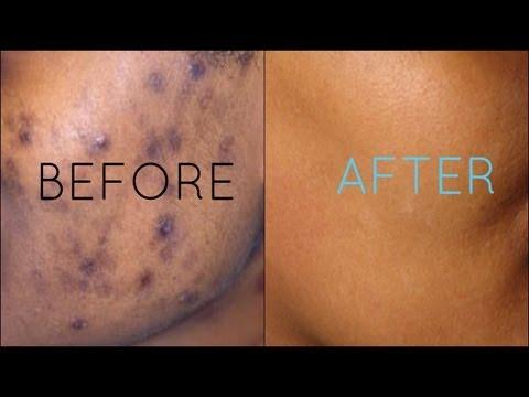 Dark Spots Fade Away | Remove Dark Spots Extract White Heads