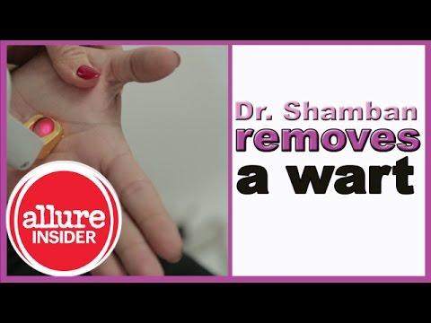 Best Ways to Remove Warts