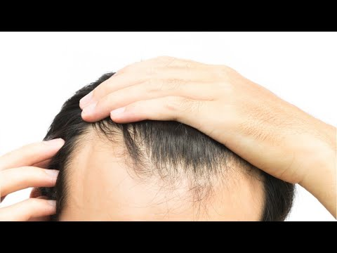 Study: New Way to Activate Stem Cells to Grow Hair