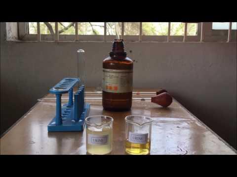 Identification test for  Albumin in Urine- Sulfosalicylic Acid and Nitric Acid.
