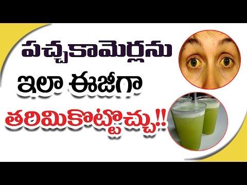 పచ్చకామెర్లను ఇలా ఈజీగా తరిమికొట్టొచ్చు!! || Jaundice Treatment at Home  - Telugu Health Facts