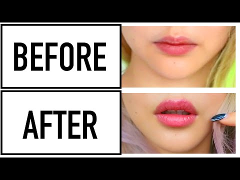 Permanent Lip Filler Effect With Your Teeth! ♥ Before & After Wengie's 6 month Invisalign Journey
