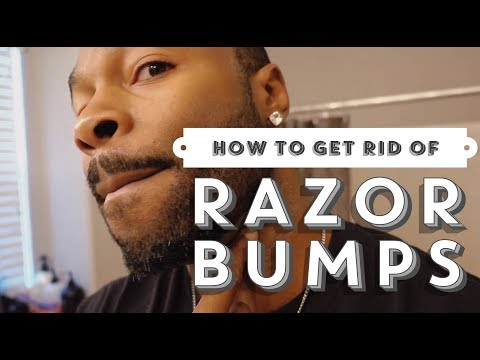 How to get rid of razor bumps| How to get rid of razor burn| How to clear up razor bumps video