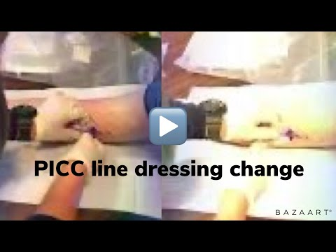 PICC dressing change with consent to film it.