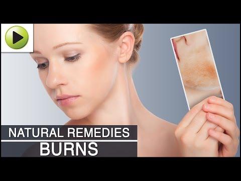 Skin Care - Burns - Natural Ayurvedic Home Remedies