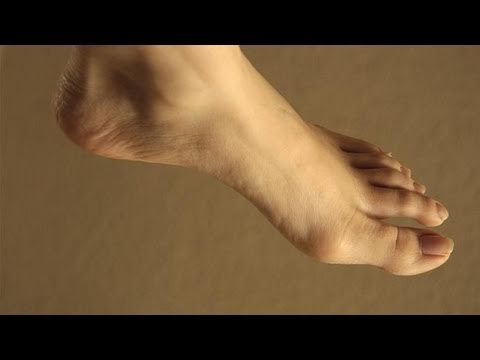 How To Relieve Chilblains