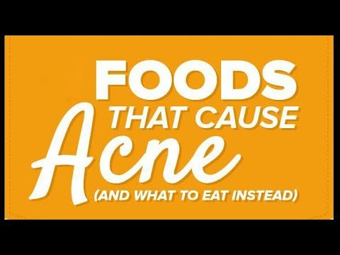 Foods that cause acne | foods to avoid for acne