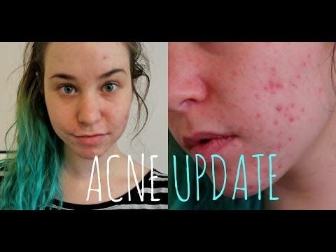 ACNE UPDATE: Birth Control, Lemon Juice, and Acne Scars