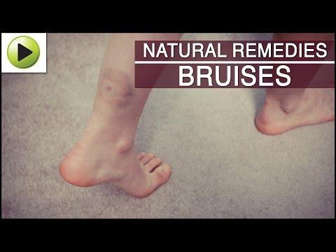 Skin Care - Bruises - Natural Ayurvedic Home Remedies