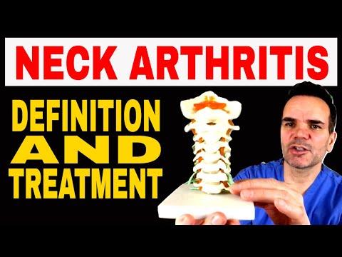 Neck arthritis 'cervical spondylosis' definition & treatment