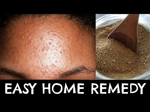 Get rid of Pimples and Acne NATURALLY | AYURVEDIC Remedy