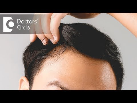 Are there any ways to treat male pattern baldness at home? - Dr. Pavithra H N