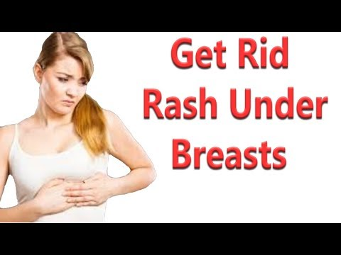 8 Remedies To Get Rid Of A Rash Under Breasts
