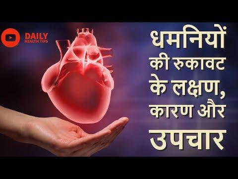 धमनियों की रुकावट के लक्षण, कारण और उपचार || Heart Blockage Symptoms,Causes & Treatment in Hindi