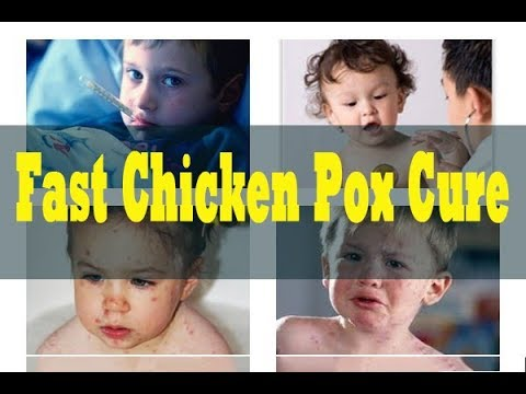 Fast Chicken Pox Cure Review - How To Treat Chicken Pox - Fast Chicken Pox Cure