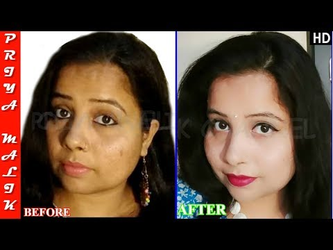 Remove Sun tan, Pigmentation, Black Spots Permanently - Get Glowing Fair Skin- Priya Malik