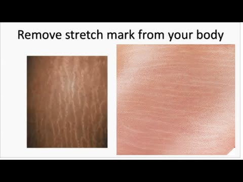 How to remove stretch marks from body