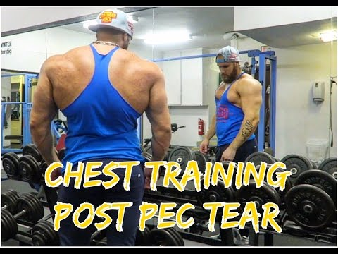 Chest Training after the Pec Tear | New Strategies